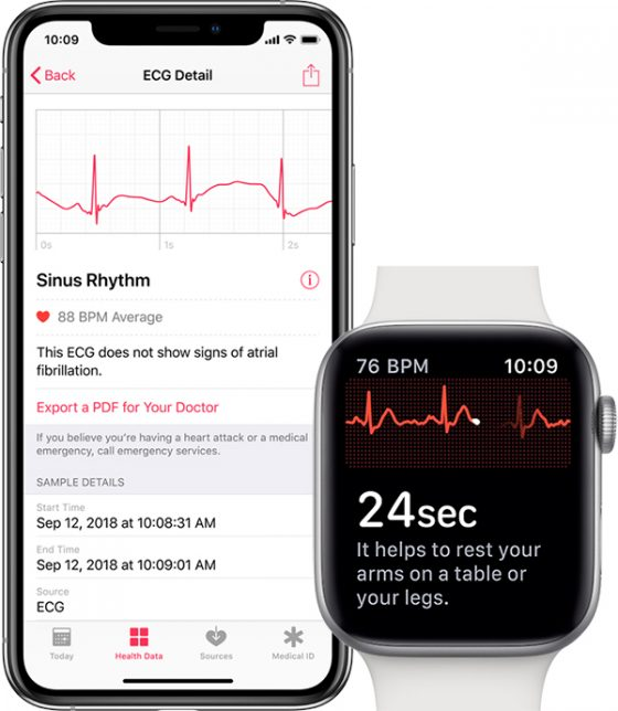 Apple Watch 4 series 4 funkcja EKG watchOS 5.1.2